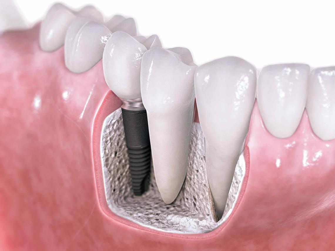 implante02